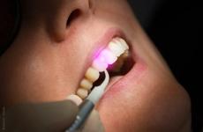 Laserbehandlung Zähne